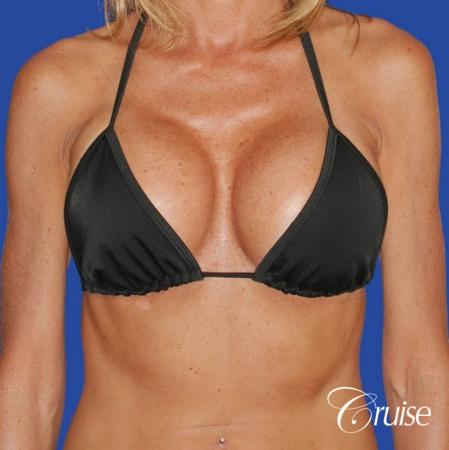 breast lifts before and after pictures  613435
