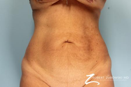 Tummy Tuck: Patient 23 - Before Image 1