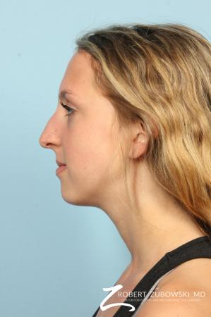 Rhinoplasty: Patient 22 - Before and After Image 2