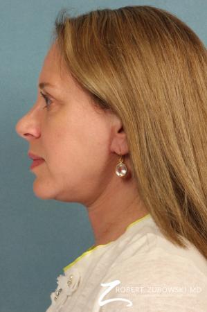 Blepharoplasty: Patient 22 - After Image 2