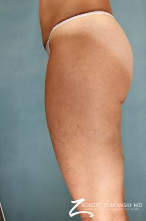 Cellulaze: Patient 1 - After Image 1