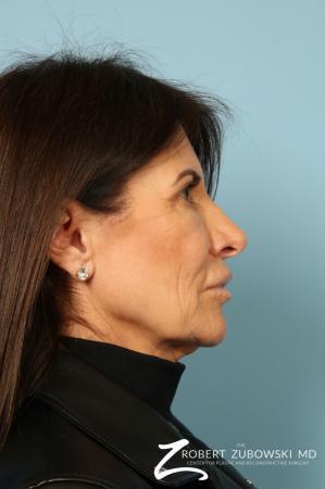 Lip Augmentation: Patient 1 - After Image 2