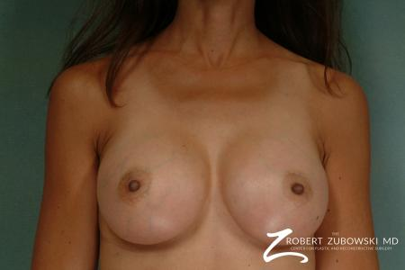 Breast Augmentation: Patient 24 - After Image 1