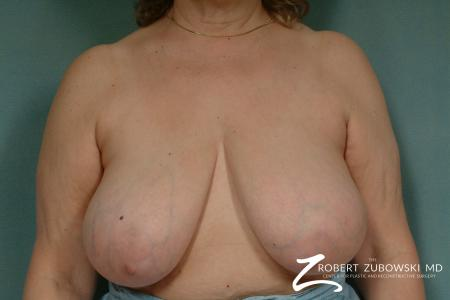 Breast Reduction: Patient 20 - Before Image 1