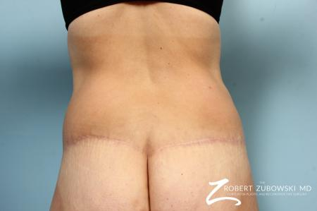 Body Lift: Patient 9 - After Image 3