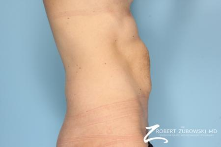 Tummy Tuck: Patient 6 - Before and After Image 2