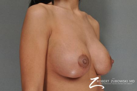 Breast Lift And Augmentation: Patient 7 - After Image 2