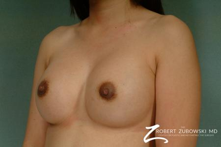 Breast Augmentation: Patient 25 - After Image 2