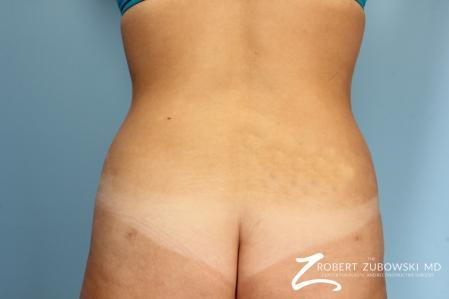 Liposuction: Patient 13 - After Image