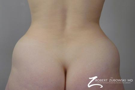 Liposuction: Patient 29 - Before and After Image 6