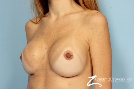 Breast Revision: Patient 1 - After Image 2