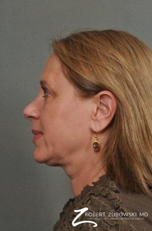 Neck Lift: Patient 5 - Before and After Image 2