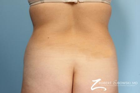Liposuction: Patient 13 - Before Image