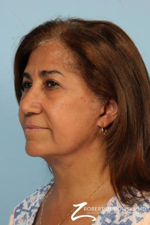 Blepharoplasty: Patient 33 - After Image 2