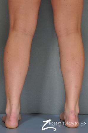 Liposuction: Patient 21 - After Image 1