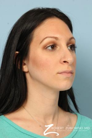 Rhinoplasty: Patient 25 - Before and After Image 3