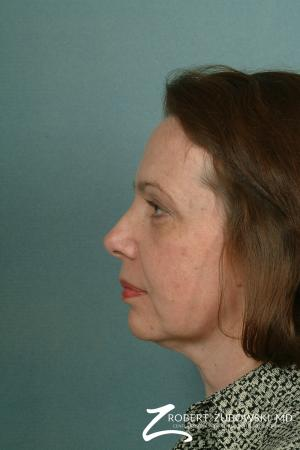 Facelift: Patient 11 - Before and After Image 2