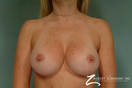 Breast Augmentation: Patient 16 - After Image 1