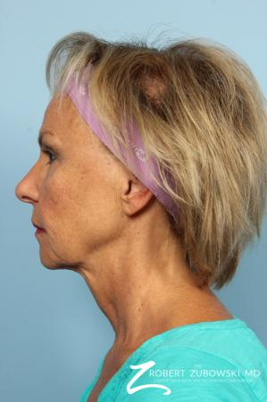 Facelift: Patient 3 - Before and After Image 3
