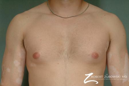 Gynecomastia: Patient 5 - Before Image