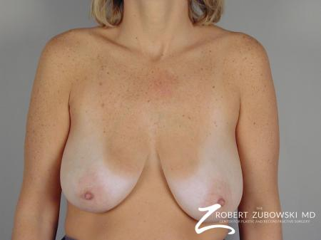 Breast Lift: Patient 5 - Before Image