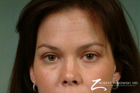Latisse: Patient 2 - Before and After Image 2