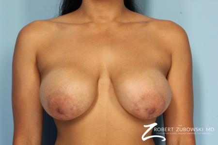 Mastopexy: Patient 1 - Before Image 1