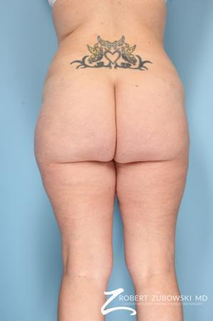 Liposuction: Patient 17 - After Image