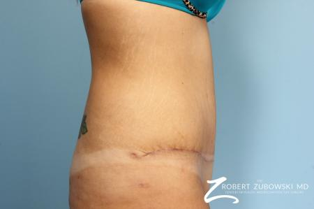 Tummy Tuck: Patient 17 - After Image 2