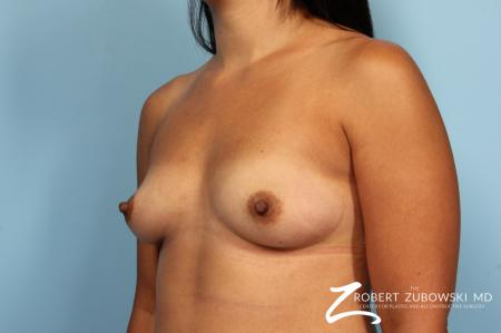 Breast Augmentation: Patient 35 - Before and After Image 2