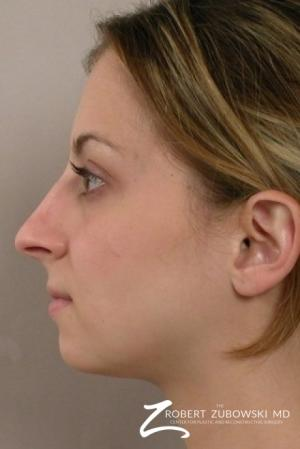 Rhinoplasty: Patient 6 - Before and After Image 2