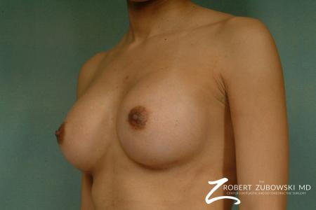Breast Augmentation: Patient 32 - After Image 2