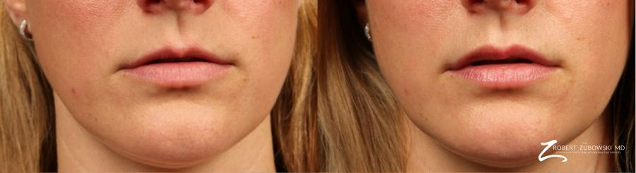 Permanent Lip Enhancement: Patient 1 - Before and After Image