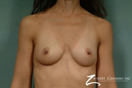 Breast Augmentation: Patient 24 - Before Image 1