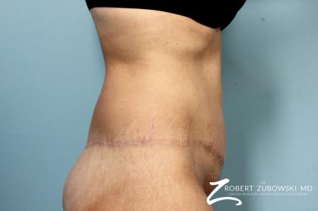 Body Lift: Patient 9 - After Image 2