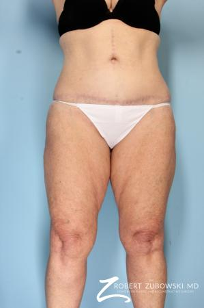 Body Lift: Patient 5 - After Image