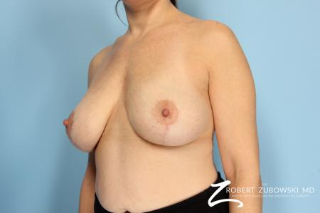 Breast Lift And Augmentation: Patient 8 - After Image 2