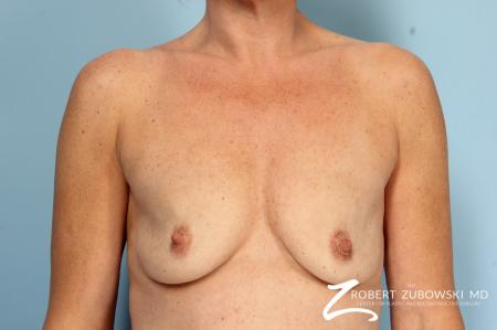 Breast Augmentation: Patient 38 - Before Image 1