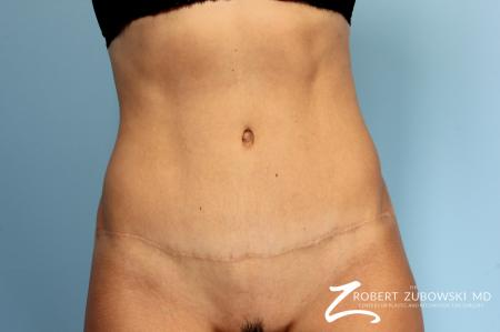 Tummy Tuck: Patient 14 - After Image