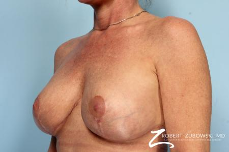Breast Lift And Augmentation: Patient 17 - After Image 2