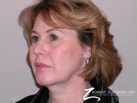 Facelift: Patient 1 - Before and After Image 2