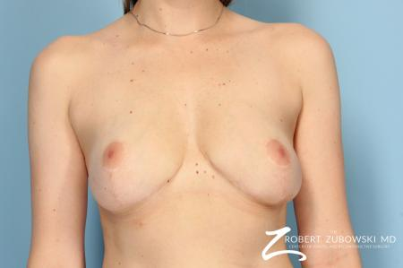 Breast Lift And Augmentation: Patient 9 - After Image