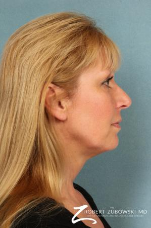 Facelift: Patient 21 - Before and After Image 3