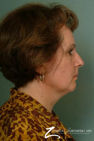 Neck Lift: Patient 8 - Before and After Image 3