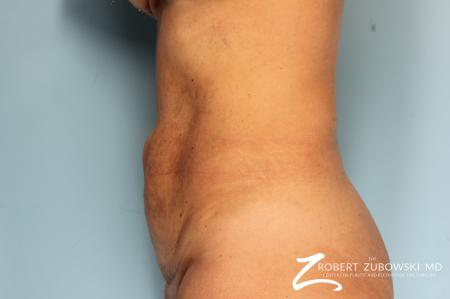 Tummy Tuck: Patient 23 - Before and After Image 3