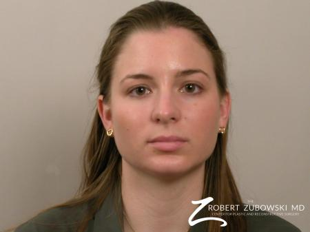 Chin Augmentation: Patient 1 - After Image 1