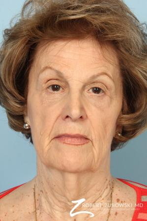 Blepharoplasty: Patient 36 - After Image
