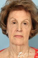 Blepharoplasty: Patient 36 - After Image