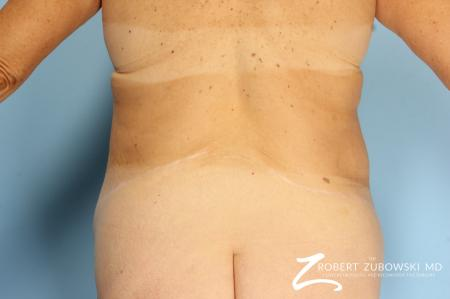 CoolSculpting®: Patient 2 - After Image 5
