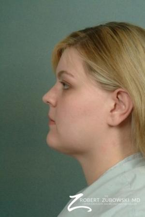 Liposuction: Patient 5 - After Image 2